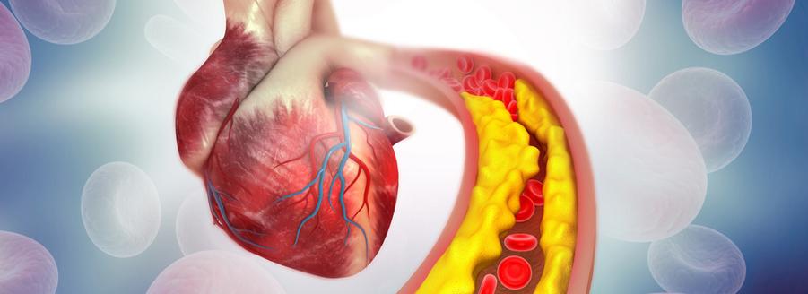 De ce este Ganoderma eficace în cazul bolilor cardio-vasculare?